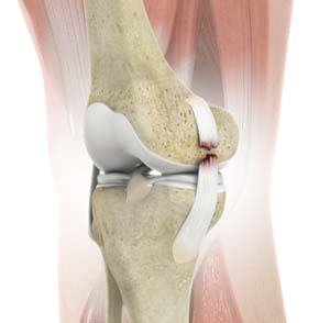Collateral Ligament (MCL / LCL) Tear/Reconstruction